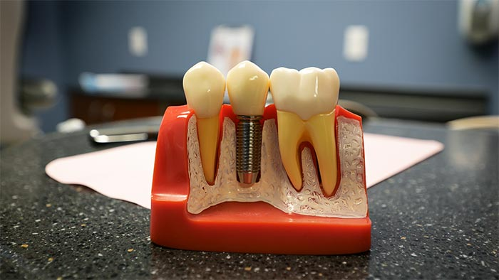Dental Implants Wayland Mi Dentistry