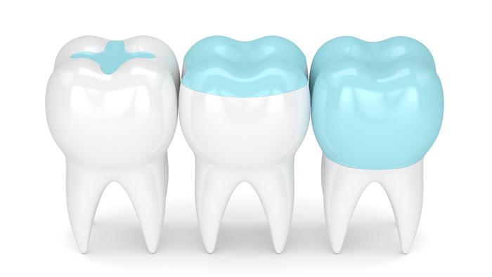 Inlays Onlays Dentists Wayland Coopersville Mi